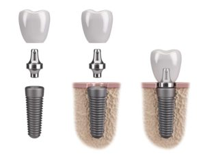 pieces of the dental implants